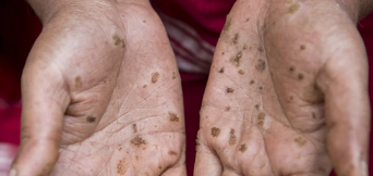 Coahuila: No acaba el mundo pero sí la vida. Arsénico contamina su agua hace 37 años (Sin embargo)