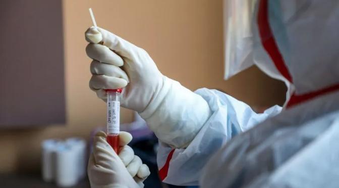 Hallan coronavirus en agua no potable de Roma y Milán; niegan riesgos (Informador)